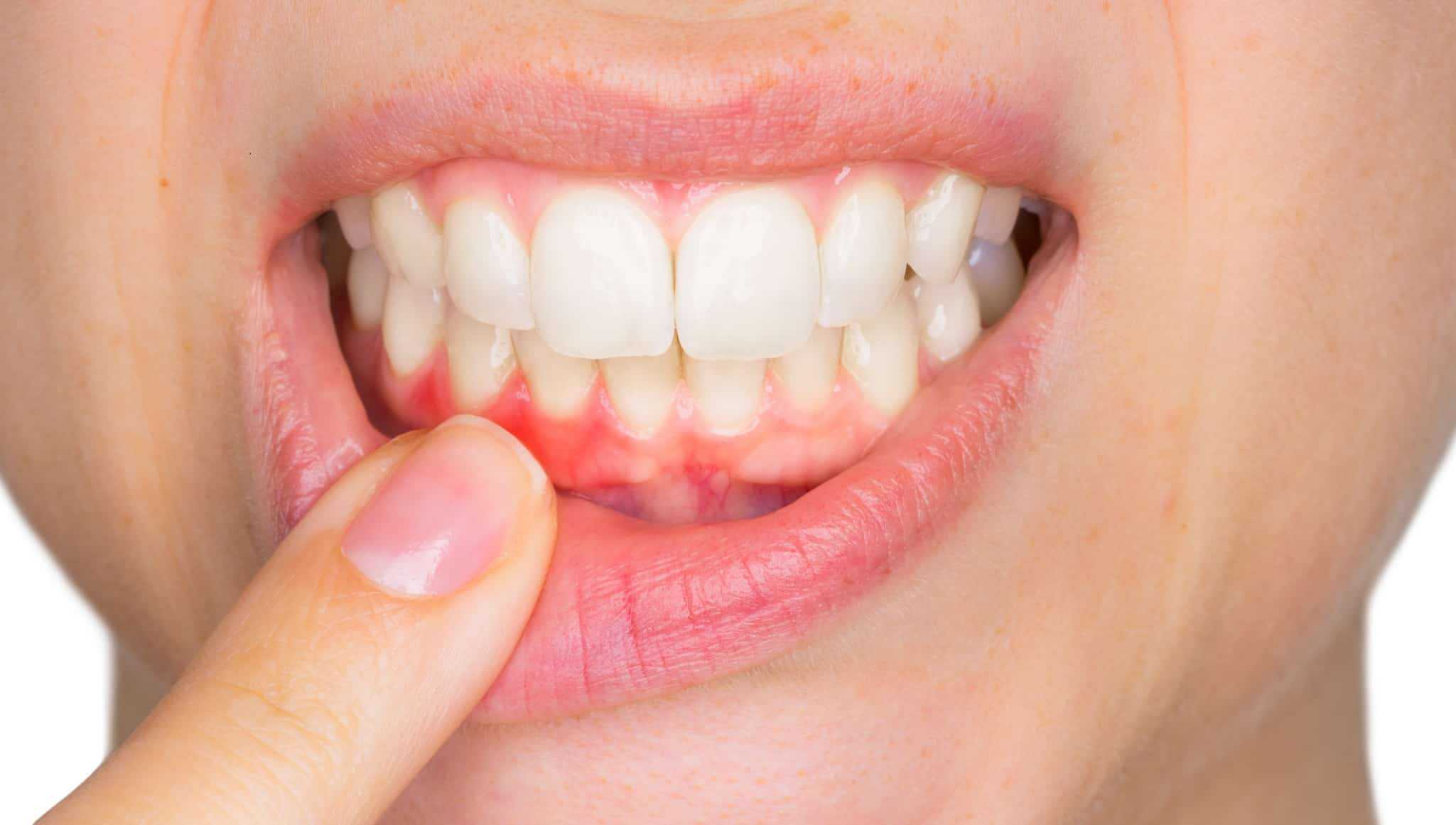 gum graft surgery by Toronto Dentists - downtown dentistry