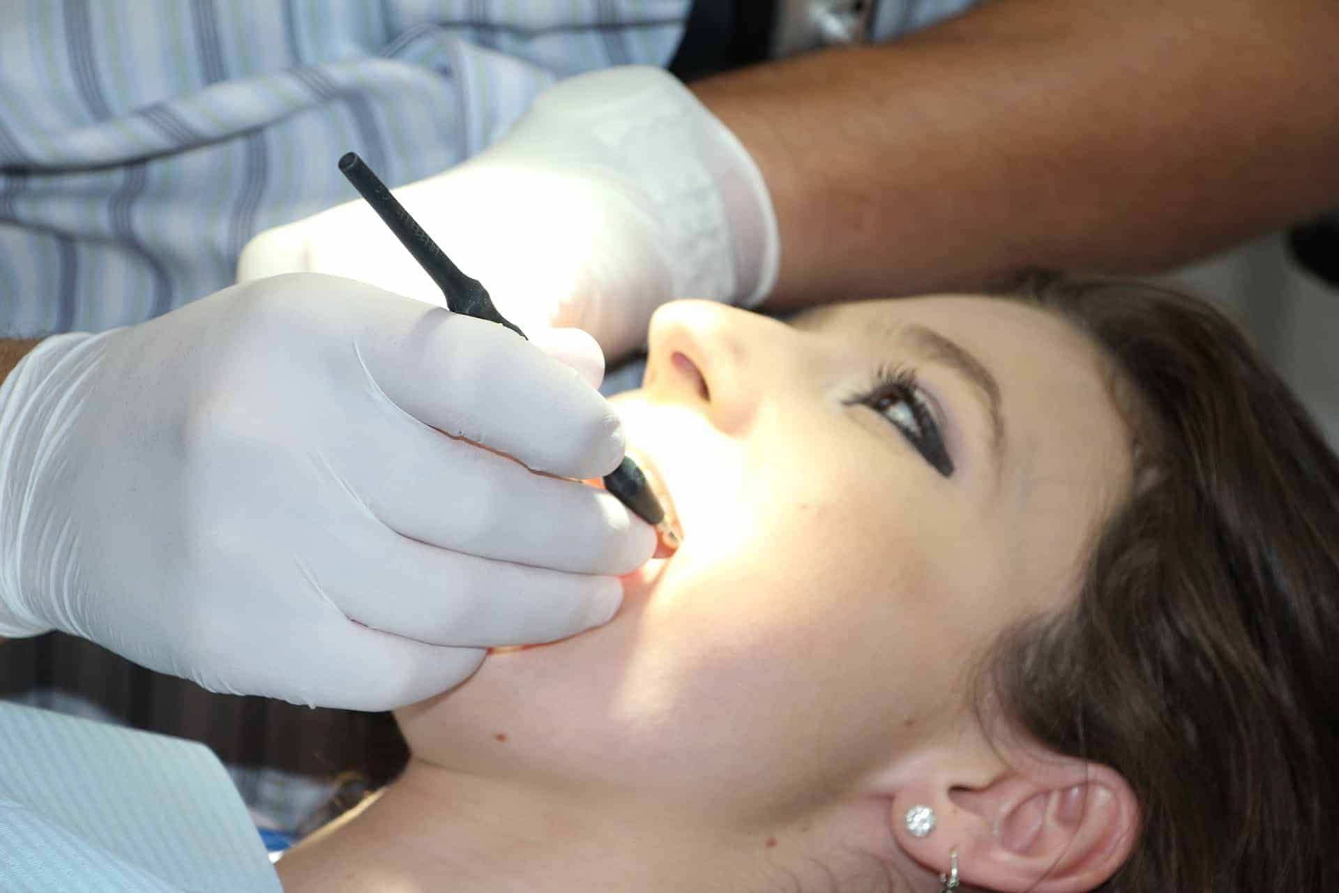 gum graft by downtown dentistry